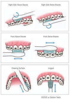 Oral #hygiene for dental #braces to removing #dental plaque. Visit:http://confidentdentalcare.in/
