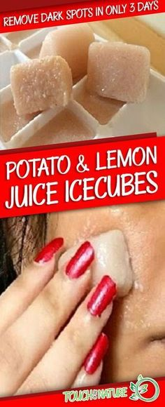 I am Shocked It Removed My Dark Spots in 3 Days, Potato & Lemon Juice Icecubes – Touch Of The Nature