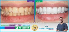 Congratulations Nahed on your new Smile! Thank You Dr Elie GEMAA! Thank You Smile Creators TEAM! 71-680660 #WeCreateYourHollywoodSmile http://youtube.com/smilecreatorslb http://smilecreators-lb.com/before-after https://www.facebook.com/SmileCreators/ http://www.cosmeticdentistrybeirut.com/ http://www.smilebeirut.com/ http://www.veneers-beirut.com/  #HollywoodSmile #EmaxVeneers #PreplessVeneers #Lebanon #DentalClinic #Dentist #Laser