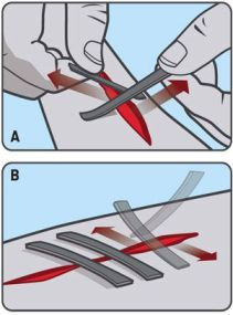 You can use duct tape to fix wounds | Clean the cut well - this is for emergency situations | add it to your First Aid or survival kit | Get medical help once out of the outdoors |