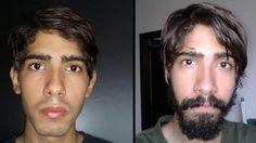 José from Venezuela Grows A Beard For 60 Days