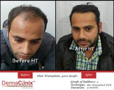 Best Hair Transplant Clinic in Chennai    Are you living in the heart of India and planning to get rid of bald spots on your head DermaClnix Chennai is proud to offer the latest hair.