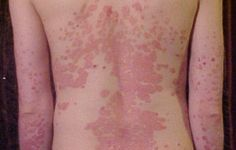5 remèdes naturels contre le psoriasis noté 3.3 - 10 votes Le psoriasis est une maladie inflammatoire de la peau. Elle se manifeste par l'apparition de plaques rouges sur le corps et peut s'avérer très gênante et douloureuse. Voici quelques conseils: Les conseils : 1.Lavez-vous le corps avec dusalon d'Alep. 2.Pour le cuir chevelu: cassez …