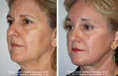 Face Lift Photo Gallery - Before and Afters - Patient 3