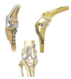 Ruptured cruciate ligament (RCrCL) is a prevalent and costly injury in the veterinary profession. It represents arguably the most common orthopedic condition in dogs necessitating veterinary care. Understanding the biomechanics of the stifle and the proposed cause of the disease will help the veterinary practitioner make an early diagnosis to a sometimes elusive condition, and select an appropriate treatment method.
