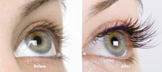 Latisse before and after picture, TOTALLY SAFE for BLUE EYES TO USE! #Latisse