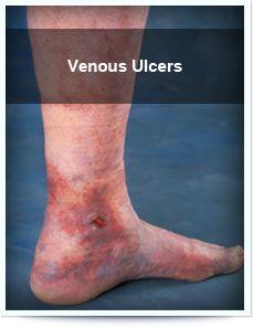 remedii populare din ulcere în varicoză