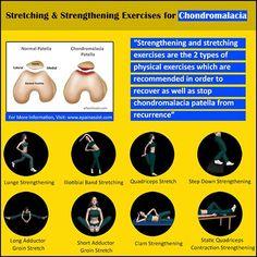Chondromalacia Patella: Sports Massage, Exercises, Stretching, Strengthening…