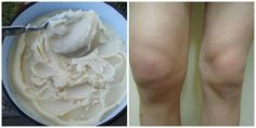 Napravite DOMAĆU MAST  koja rješava probleme bolnih koljena, laktova, ramena… Pomaže već poslije prvog nanošenja. (RECEPT) | Novi Kuhar