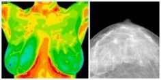 Breast thermography vs mammogram. Informative and very interesting! THERMOGRAPHY!