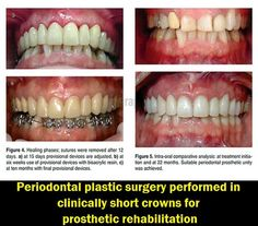 Periodontal plastic surgery performed in clinically short crowns for prosthetic rehabilitation | OVI Dental