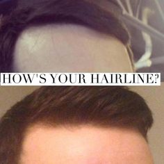 Bald Heads - Hairl Loss Tips Going Bald, Bald Hair, Monat Hair, Healthy Aging, Hairline, Side Effects, Hair Loss, Anti Aging, Hair Care