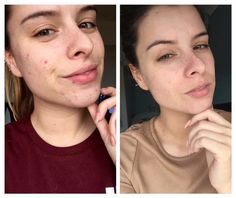 The results from using our glacial mud mask 3 times a week, polishing peel 3 times a week and the facial toner and wash daily! Aloe Vera For Face, Aloe Vera Face Mask, Acne Face Mask, Acne Skin, Face Masks, Polishing Peel Nuskin, Marine Mud Mask, Face Mask For Spots, Mask For Oily Skin