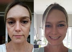 Before and after using Luminesce Cellular Rejuvenating Serum