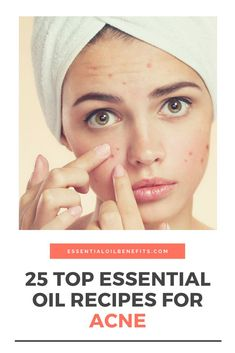 Are essential oils effective for acne treatment. Find out the best essential oils, carrier oils, blends and home remedies to deal with acne and hormonal acne. Essential Oils For Rosacea, Essential Oils For Skin, Essential Oil Uses, Cystic Acne Treatment, Acne Treatments, Natural Oils For Skin, Natural Beauty, Pimples Remedies, How To Get Rid Of Pimples