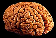 Diabetes Can Make Your Brain 5 Years Older