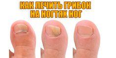Как лечить грибок на ногтях ног | Полезные советы!