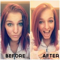 """Loving the new dry shampoo ! Check out what she had to say! HOLY CRAP!!!!! I HAD to share this. These two pictures of me are taken 5 minutes apart. I have oily hair and this morning I woke up with that typical """"second day hair"""" where I am just at a loss of how I can hide the oil so I usually just throw it up in a bun. TODAY! I relied on my dry conditioning shampoo. Took two minutes to spray it on my roots, run my fingers through and part it the way I like it -"""