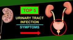 Urinary Tract Infection Symptoms – Top 5 UTI Symptoms and Prevention Met...