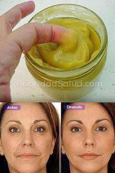 Esta crema elimina las arrrugas. Prueba esto remedio natural que puedes preparar en casa para deshacerte de las arrugas.