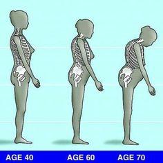 --=* Palavra de Médico *=-- (Osteoporose)