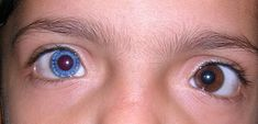 Fil:Heterochromia Iridis 2 Different Colored Eyes, Heterochromia Eyes, Dark Blue Eyes, Eye Parts, Albinism, Look Into My Eyes, Photo Reference, Cool Eyes, People