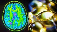 Prevratný objav! Zmierniť príznaky sklerózy multiplex môže bežný vitamín