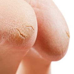For a Diabetic cracked heels are not only painful, but could create serious complications. Learn more about Diabetic foot care :http://www.thefootpros.com/practice_areas/a-need-to-know-basis-diabetes-and-your-feet.cfm