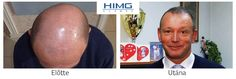 Hair Transplantation Before After photos. Hair Transplant at the best quality for a reasonable price!