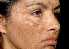 Máscara milagrosa para melasma e manchas no rosto | Baú das Receitas 2