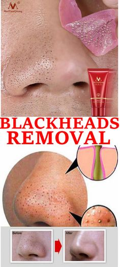 whitening, shrink pores, containment, eliminate pimples acne, activate skin to k… – Rebel Without Applause Warts On Hands, Warts On Face, Skin Bumps, Skin Moles, Acne Scar Removal, Skin Tag Removal, Removal Tool, What Causes Warts, Brown Spots On Skin