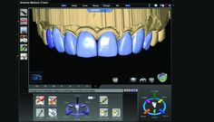 CAD/CAM dentistry and the laboratory technician: Partners in success | Dental Tribune International