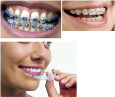 It is very common for teenagers to need braces to help correct the smile that you fell in love with from the day they were born. The good news for your Types Of Braces, Smile Makeover, Dental Implants, Dental Health, Dentistry, Teen, Cosmetics, Oasis, Kids