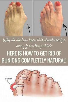 Why Do Doctors Keep This Simple Recipe Away From The Public Here's How To Get Rid Of Bunions Completely Natural! is part of Get rid of bunions Bunions are common problem, and affects more women t - Health And Beauty, Health And Wellness, Health Care, Health Fitness, Herbal Remedies, Health Remedies, Holistic Remedies, Natural Cures, Natural Health