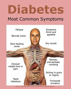 What are the most common symptoms of diabetes? How do you know if you have diabetes? What should a person do to prevent diabetes? Diabetes is usually a lifelong (chronic) disease in which there a… Type 2 Diabetes Symptoms, Signs Of Diabetes, Types Of Diabetes, Diabetes Remedies, Diabetes Statistics, Diabetes Levels, Diabetes Quotes, Lchf, Tips