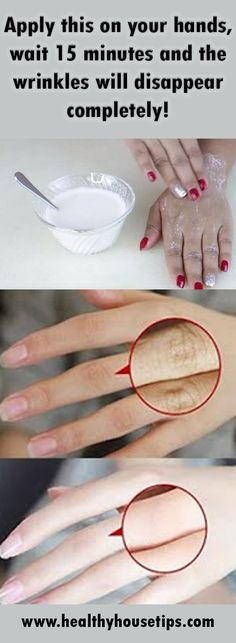 Amazing Remedies Apply This On Your Hands, Wait 15 Minutes And Wrinkles Disappear Completely! Wellness Tips, Health And Wellness, Health Fitness, Home Remedies, Natural Remedies, Health Remedies, Tips & Tricks, Tips Belleza, Belleza Natural