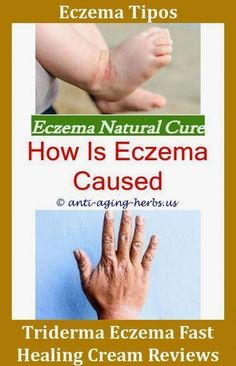 Natural Remedies For Varicose Veins Lotion to treat eczema.Eczema on eyes natural treatment.Tar soap for eczema - Eczema Cure. Eczema On Hands, Nummular Eczema, Get Rid Of Eczema, Eczema Causes, Severe Eczema, Get Rid Of Warts, Eczema Relief, Eczema Remedies, Remove Warts