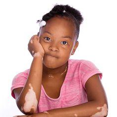 """I think the little girl is beautiful"" - malvinadwyerjohnson. Show your love for vitiligo. https://www.instagram.com/p/BEGsJRVqIHw/"