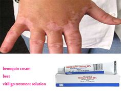 Vitiligo or white patches on the skin is a common disorder which discolours the skin. Monobenzone is a de-pigmenting cream, which discolours the skin around the affected areas.