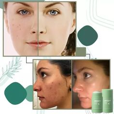 US$ 19.99 - Poreless Deep Cleanse Mask Stick - m.dunpie.com Fiber Lash Mascara, Fiber Lashes, Cleansing Mask, Natural Facial, Clean Face, Wash Your Face, Skin Brightening, Skin Problems, Facial Masks