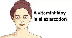 5 jelzés az arcodon, amely azt mutatja, hogy vitaminhiányod van – Azt beszélik