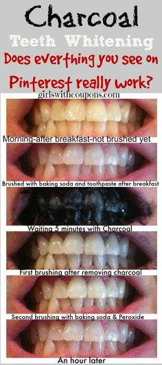Miss Beauty: Teeth Whitening with Charcoal - Does everything yo...