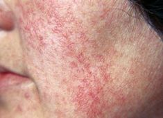Capillaries can break on any face area, but especially around the nose and under the eyes. Learn how to get rid of spider veins on face, naturally. Face spider veins treatment is different from the one for legs, because these veins break from different causes. Even if they don't represent a serious problem, most women …