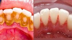 This Home Remedies will help to remove dental plaque at home in few minutes. it also helps to Naturally Remove tartar from Teeth. Plaque is a sticky, soft fi. Teeth Bleaching Kit, Teeth Whitening, Home Remedies, Beauty Hacks, Health Fitness, How To Remove, Skin Care, Meals, Plaque