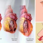 THESE ARE THE 9 DANGEROUS SYMPTOMS OF HIGH BLOOD PRESSURE THAT SHOULD NOT BE IGNORED!