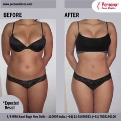 Body Contouring:Is It For You?Not everyone who loses a lot of weight needs body-contouring surgery.Moreover,Dr.S.S.Gambhir say,not everyone needs it for the entire body.
