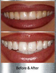 Como Branquear Os Dentes Com Bicarbonato De Sodio Receitas