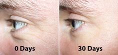 Dr Oz, Retinol, Hyaluronic Acid, Matrixyl, Vit C All in 1 Wrinkle Creams - Dr. Anti Aging Tips, Best Anti Aging, Anti Aging Cream, Anti Aging Skin Care, Retinol For Acne, Best Retinol Cream, Albizia Julibrissin, Anti Wrinkle, Wrinkle Creams