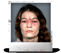 here you have some mugshots of drug addicts that use meth