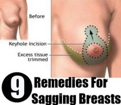 9 Remedies For Sagging Breasts